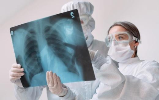 A 313 aumentaron los casos de tuberculosis en Villavicencio